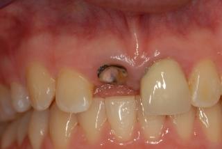 Broken incisor crown with decay