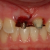 implant supported provisional