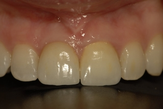 Final crown on dental implant