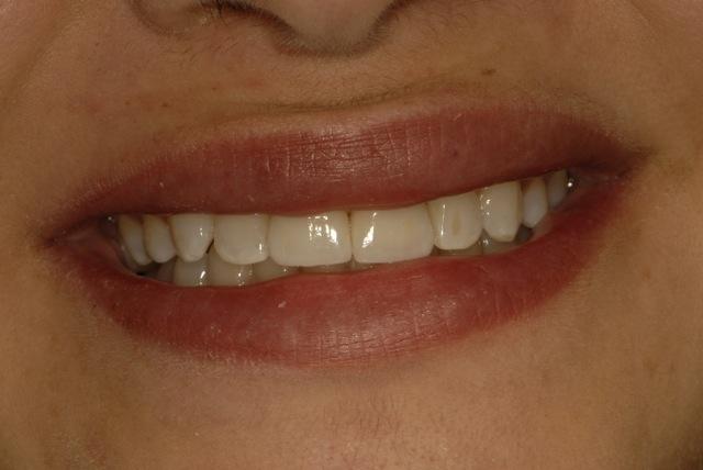 New smile