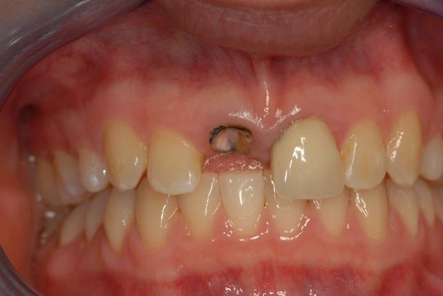 Broken upper incisor tooth