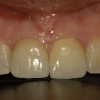 Final crown on dental implant