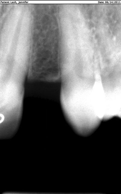 X-ray missing upper lateral incisor #10