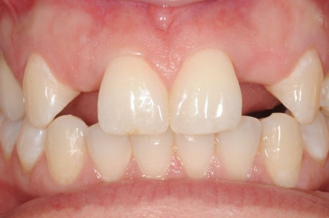 Congenitally Missing upper lateral incisors