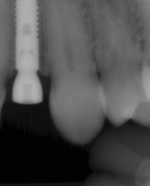 Dental implant placement #10