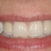 New smile- Final crowns on dental implants