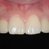 Natural appearance of the new teeth supported by implants