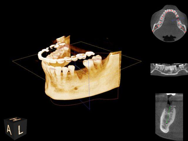 CBCT 3D image
