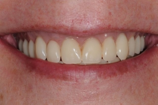 Cosmetic results with a new smile