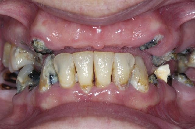 Decayed Teeth Extraction Extraction of decayed teeth