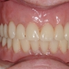 Overdentures supported by implants
