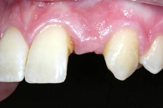 Missing lateral incisor- before implant placement