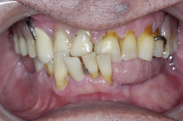 Decayed Teeth Extraction Gum disease and tooth decay