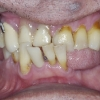 gum disease and tooth decay with extraction and immediate implants