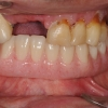 Overdenture with four implants