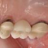 Patient B- Single upper molar