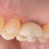 Patient C- Upper single molar