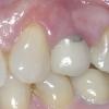 Patient D- Upper single premolar