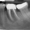 infected molar with bone loss