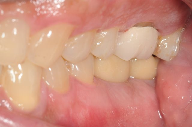 Final bite with implant supported crowns
