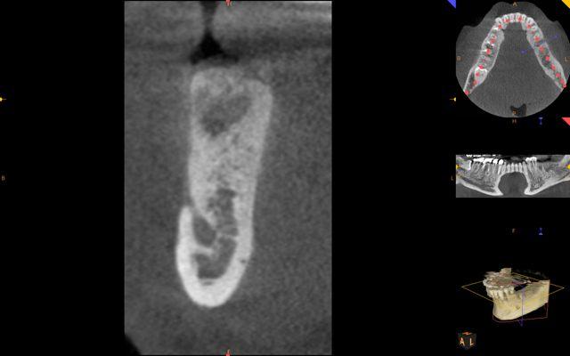 CBCT (dental scan) shows excellent bone