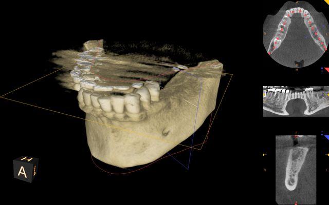 CBCT 3-D model