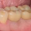Final crowns on dental implants