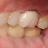 Final bite of implant crowns
