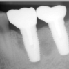 Final X-ray of crowns on implants