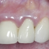 Infected upper incisor