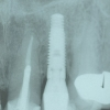 Final implant X-ray