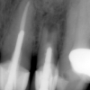 Infected tooth- upper incisor