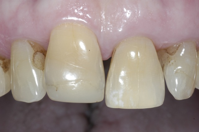 Incisor with uneven gingiva