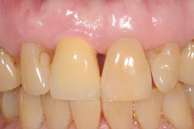 Dental implant by Dr Kazemi