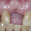 Bone graft to extraction site