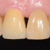 Natrual appearing crown on dental implant