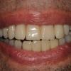 Patient smile