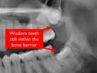 Impacted wisdom teeth- Dr. Kazemi