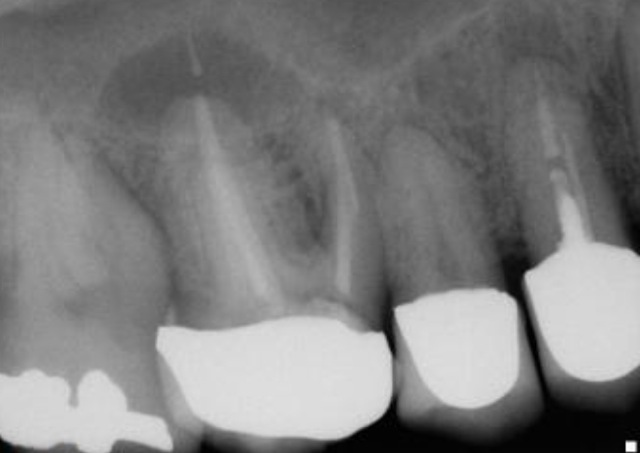 single stage sinus lift and dental implant