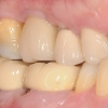 Final restoration and occlusion