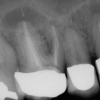 Tooth with abscess and infection