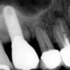X-ray of implant in one year
