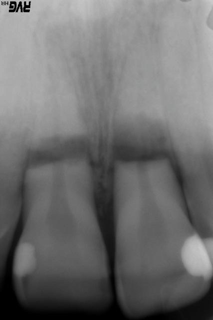 xray of broken teeth