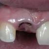 caries-central-incisor