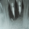 periodontal-abscess