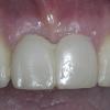 Transitional temporary teeth