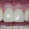 provisional restoration on dental implants