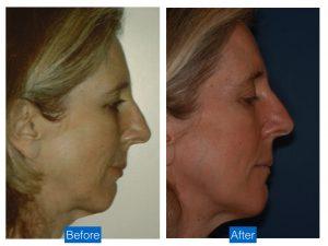Chin augmentation advancement implant bethesda washington dc 1