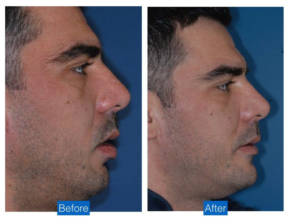 Chin augmentation advancement implant bethesda washington dc 2.jpeg