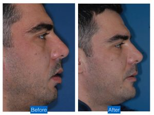 Chin augmentation advancement implant bethesda washington dc 2.jpeg
